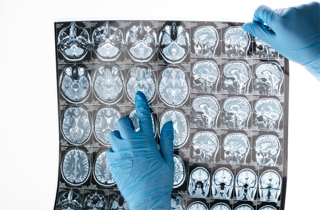Зоны поражения мозга