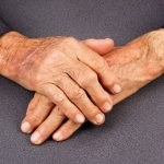 В Японии готовы лечить болезнь Паркинсона стволовыми клетками