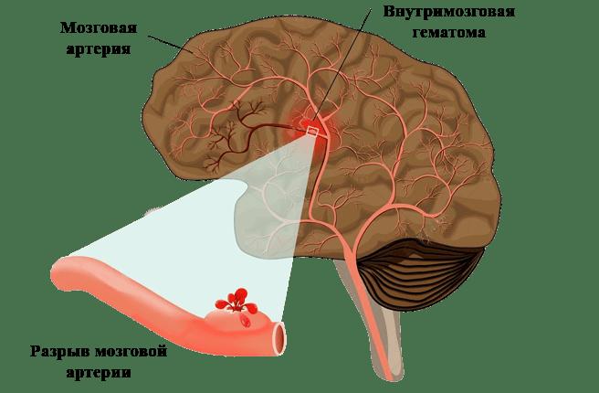 церебральный инсульт