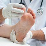 Физиотерапия при атеросклерозе сосудов ног и облитерирующем эндартериите