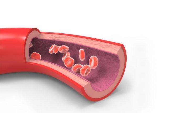 Облитерирующий атеросклероз и эндартериит отличия thumbnail