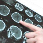 Характер активности мозга показывает на тяжесть дистонии и предсказывает эффективность лечения