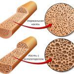 Новое лекарство против остеопороза обещает избавить от побочных эффектов обычной терапии